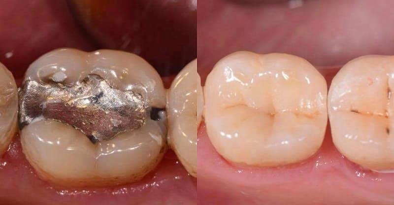 zęby odbudowa