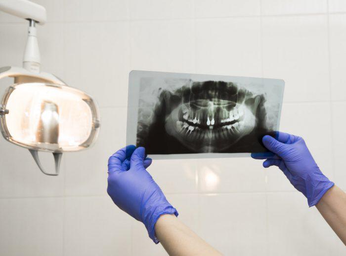 X-RAY zęby